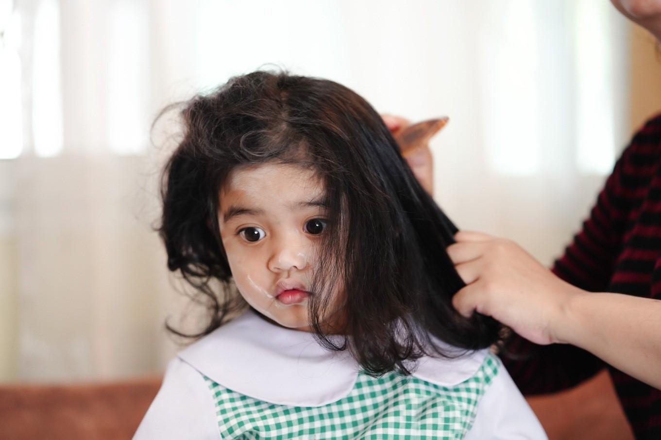 Perlukah Vitamin Rambut Untuk Anak?